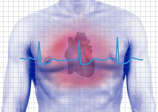 Лечение кардиогенного шока