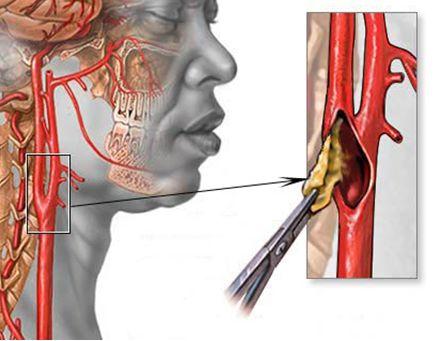 Хондроз шейного отдела позвоночника симптомы лечение народными средствами