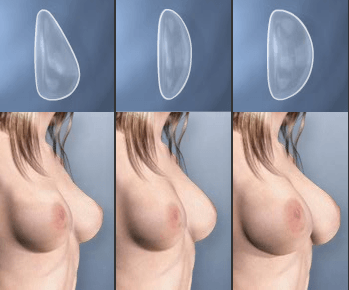 Варианты пластической операции на груди