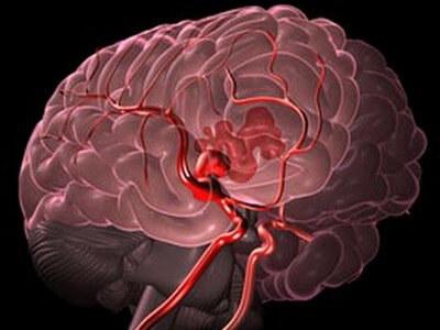 Симптомы субарахноидального кровоизлияния