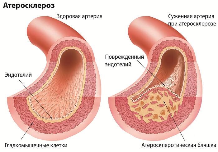 Атеросклероз: провоцирующие факторы