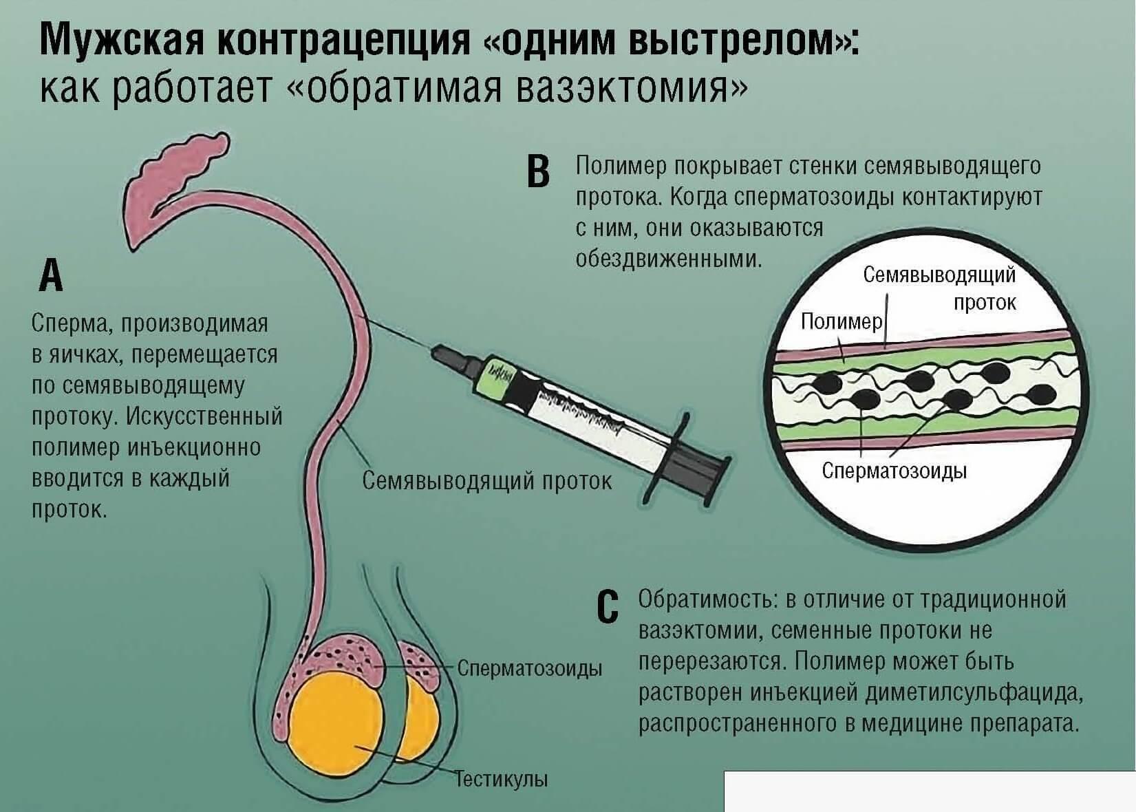 vosstanovlenie-muzhskoy-spermi