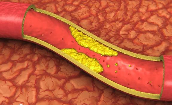 Лечение атеросклероза сосудов