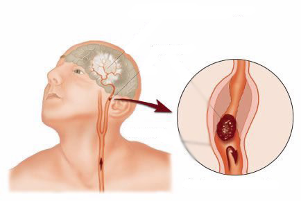 Симптомы аневризмы сосудов мозга