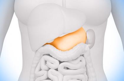 Аденома поджелудочной железы