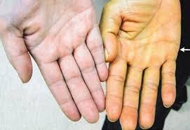 Как выглядит печень, глаза людей, ногти при гепатите С: фото