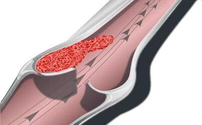 Уртикарный васкулит