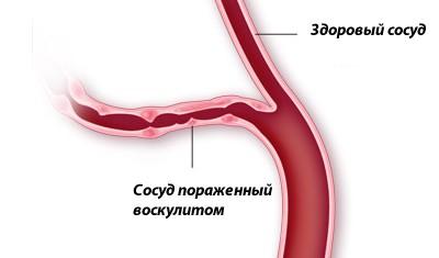 Методы лечения васкулитов